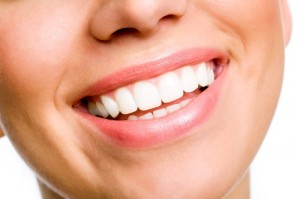 teeth whitening services, Lakeland FL